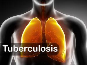 Lingkungan Sekolah Berperan Penting Cegah Tuberkulosis