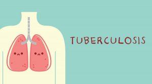 Strategi Preventif, Deteksi, dan Terapi Hadapi Kasus TBC