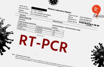 Batas Tarif Tertinggi Pemeriksaan RT-PCR Diturunkan